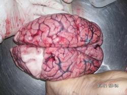 800px-Human_Brain[1]